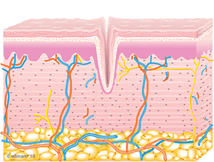 Untreated Skin